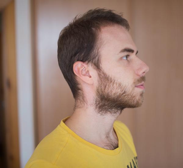 beard-man-2